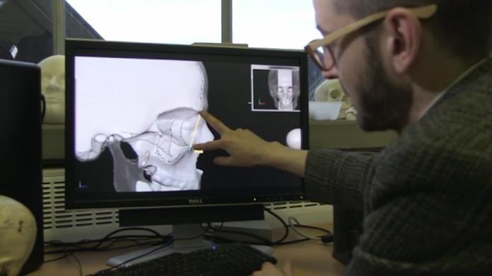 Skan 3D czaszka