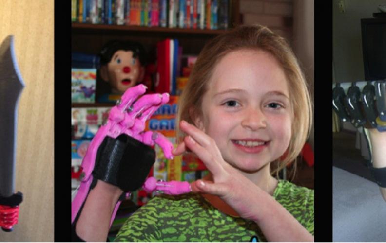 Proteza ręki wykonana przy pomocy skanera 3D