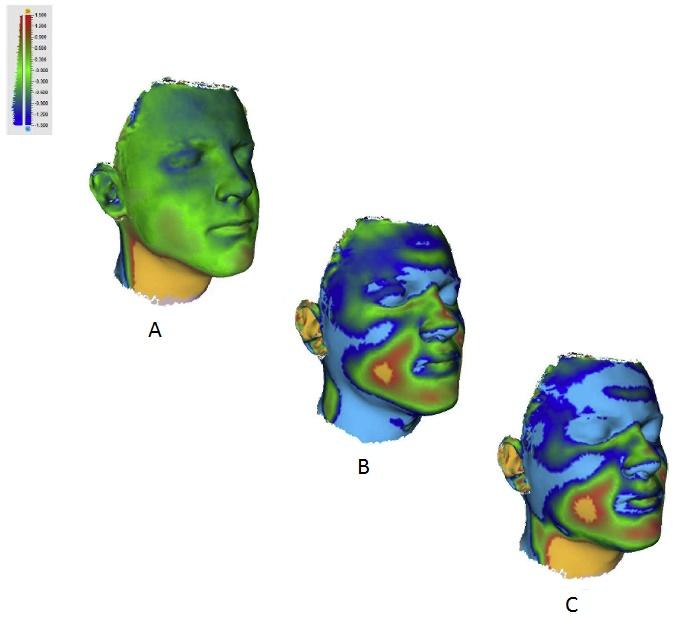 skanowanie 3D medycyna, skanery 3d