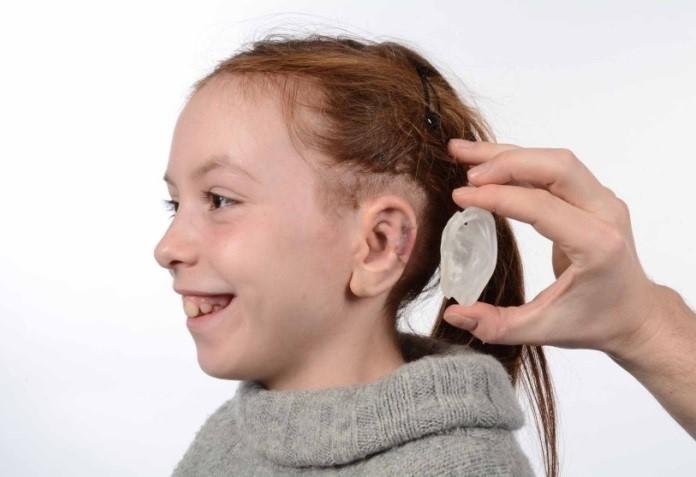 Model 3D implantu ucha