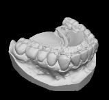 Odlew zębów 3D wykonany skanerem 3D Micro